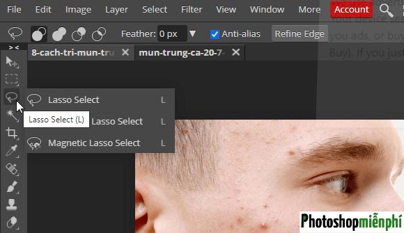 Xóa mụn trên mặt bằng Photoshop online